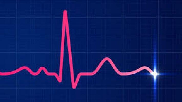 Patru aparate de tip EKG au fost donate Spitalului de Boli Infecțioase Dr. Victor Babeș Timișoara